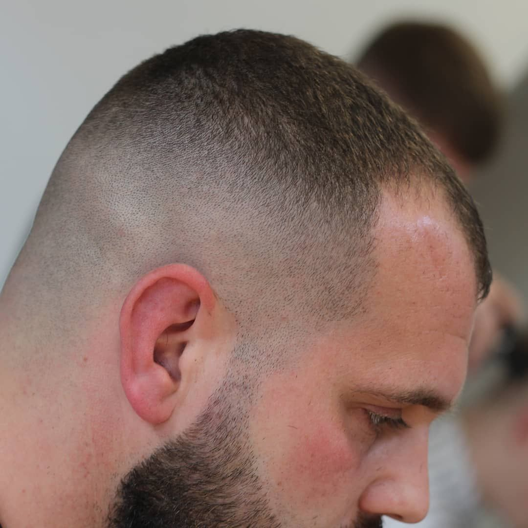Male Pattern Baldness Hairstyles For Thin Hair Men