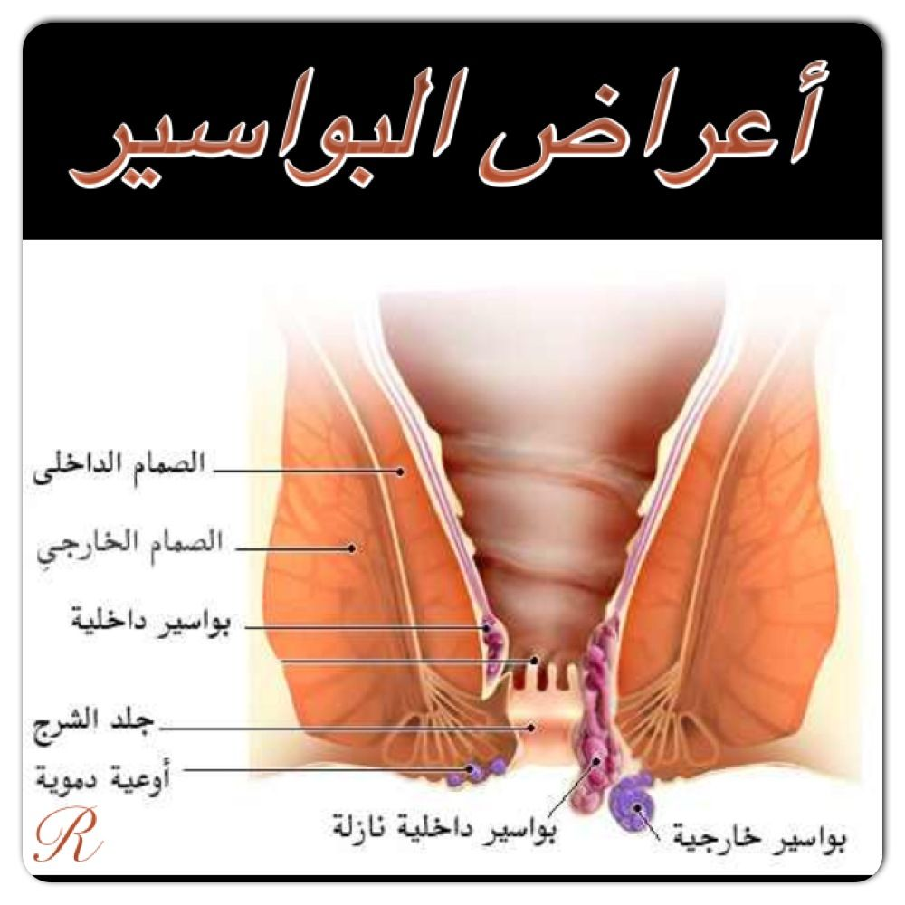 Pin On Disease Conditions