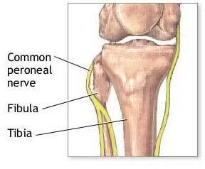 common peroneal nerve - crosses lateral, anterior head of the fibula ...