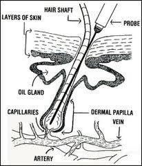 Absolute Electrology Electrolisis Electrolysis Hair Removal Hair Removal Laser Hair Removal
