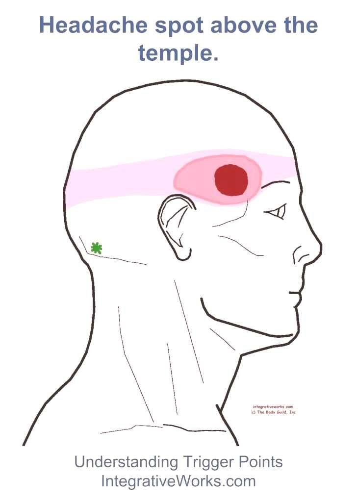 #headaches #headache #frontal #relief #remedy #chart # ...