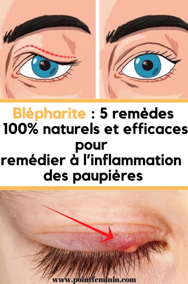 Comment Réduire L Inflammation Des Yeux Et Des Paupières Inflammation Yeux Paupières Blepharite Remede Inflamation Home Remedies Inflammation