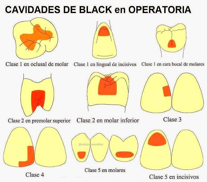 cavidades-black | Dientes | Pinterest | Odontología, Dientes y Dentistas