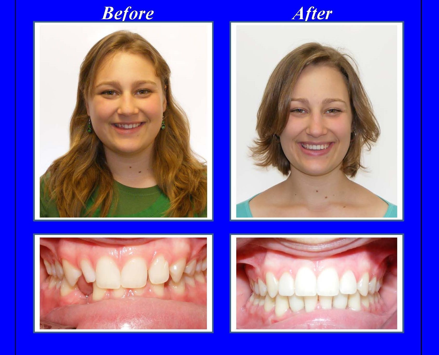 This Patient Was Missing Two Lower Front Teeth And Her Upper Lateral Incisors Were Small Especially Her Upper Orthodontics Tooth Replacement Porcelain Crowns