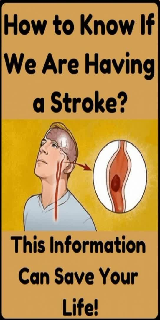 How To Recognize A Brain Stroke?
