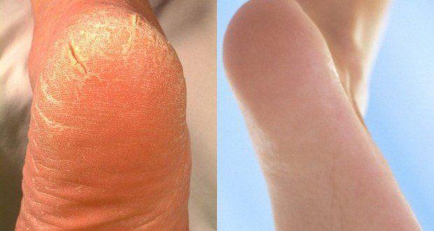 peau seche pieds talons