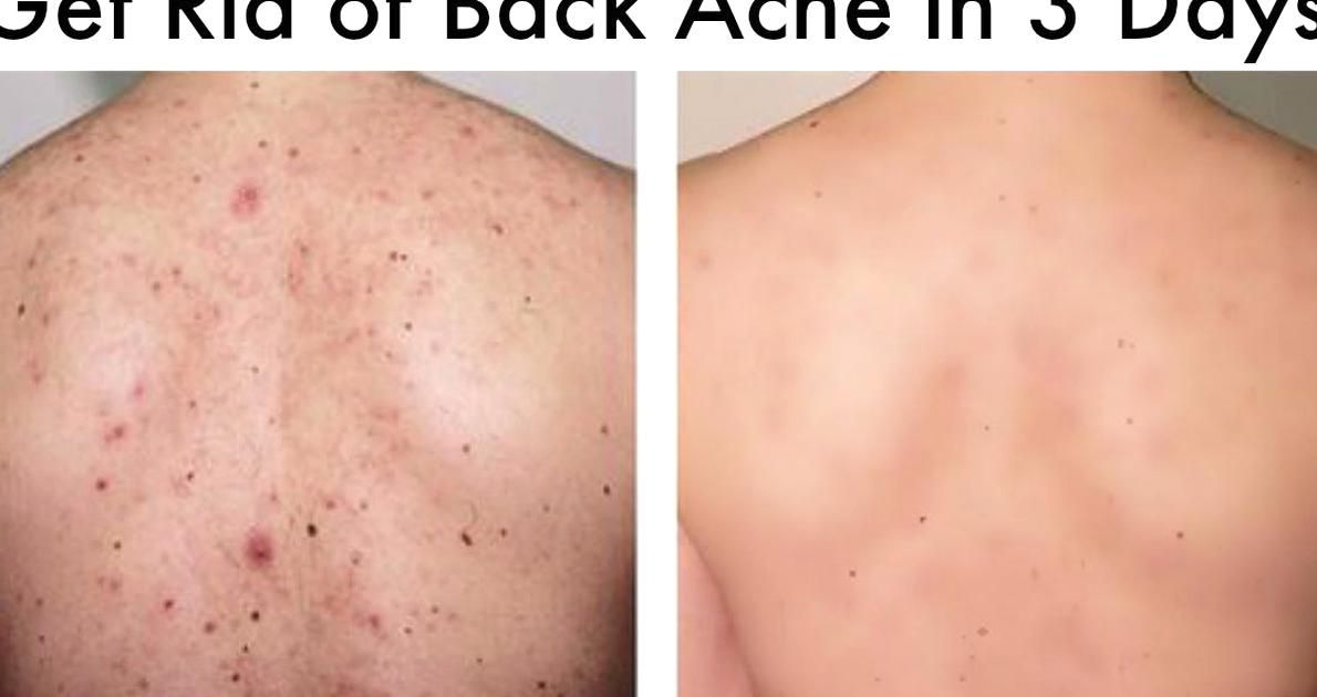 8c6fc55770dfa09e01b73af3897ab81c - How To Get Rid Of Chest Acne And Scars