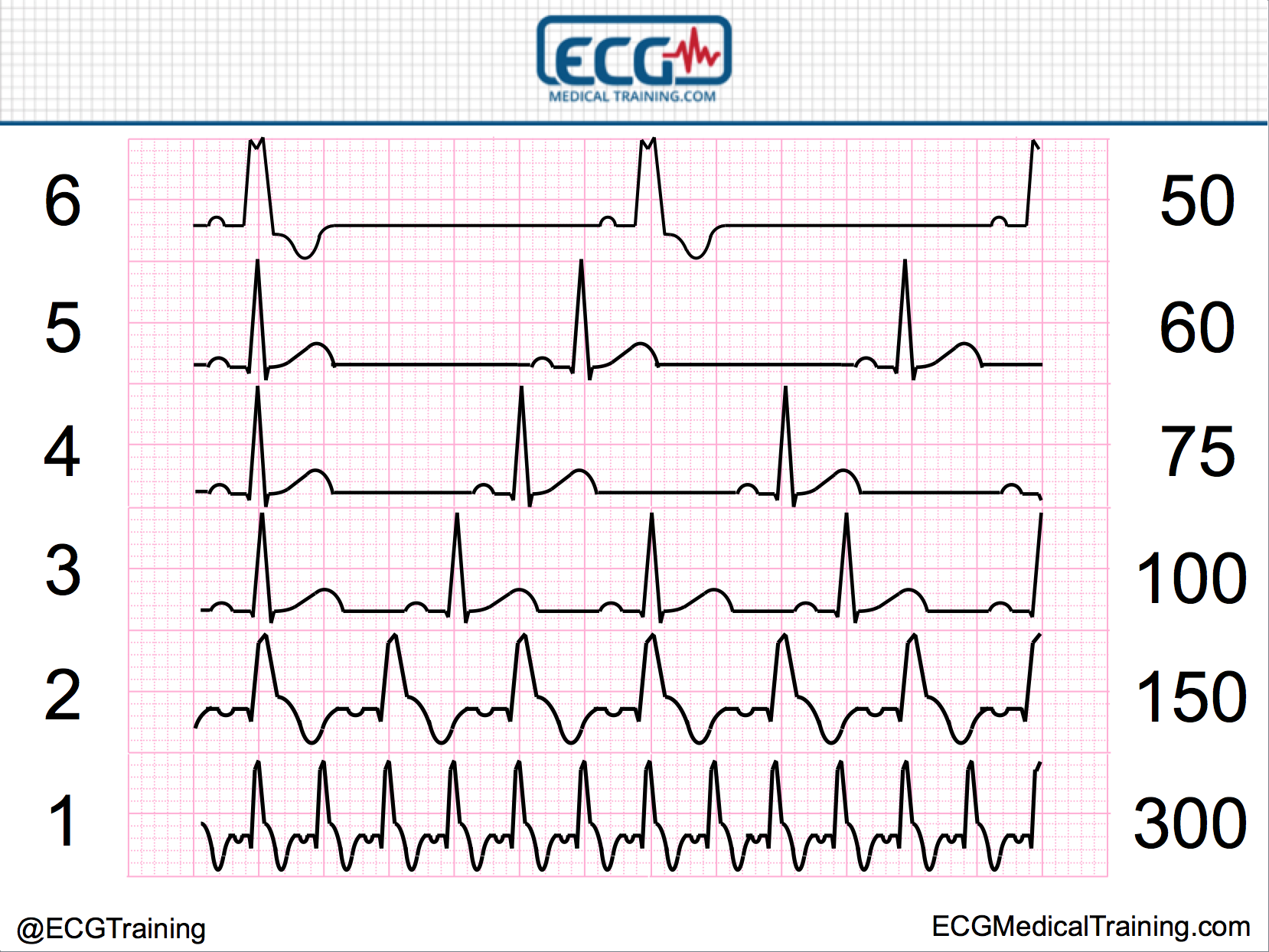 Large block method heart rate nurse concepts pinterest heart large block method heart rate ccuart Image collections