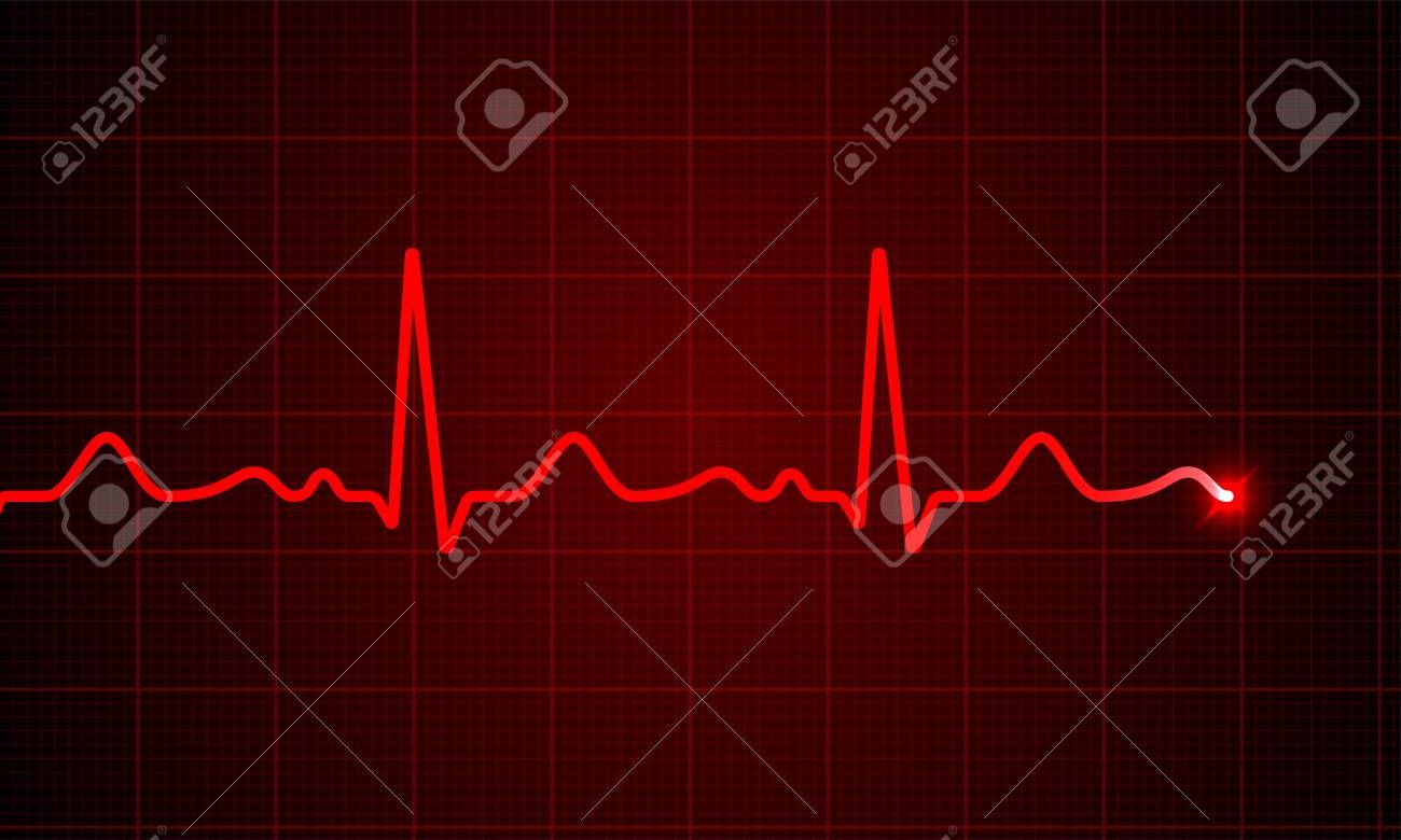 Heart cardiogram pulse chart on electrocardiogram monitor