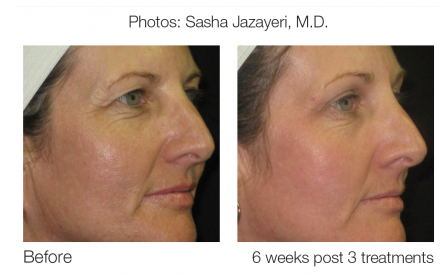 Sublative Laser Syneron and Candela antiageing aesthetic