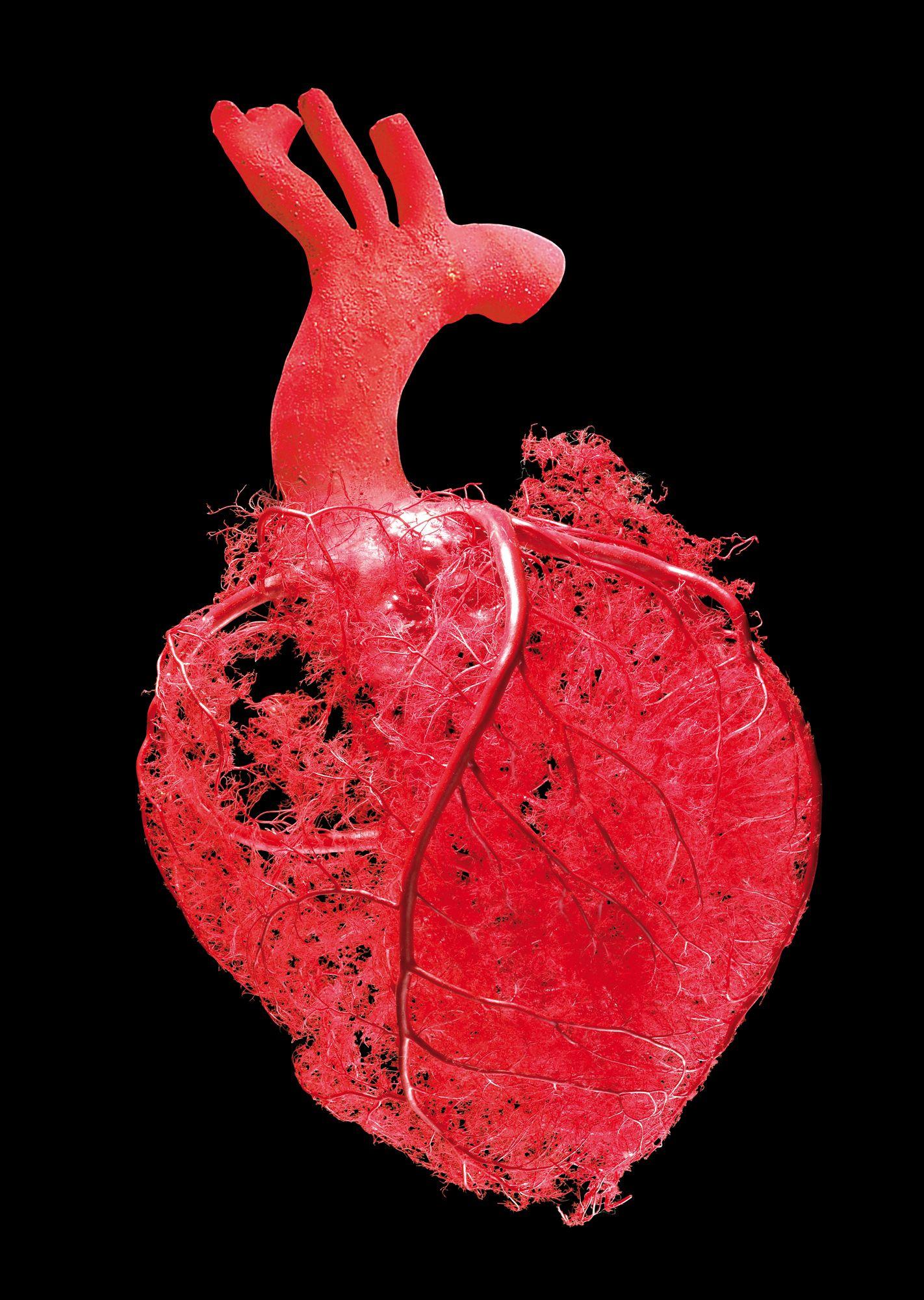 body blood vessel - Google 검색 | Veins | Pinterest