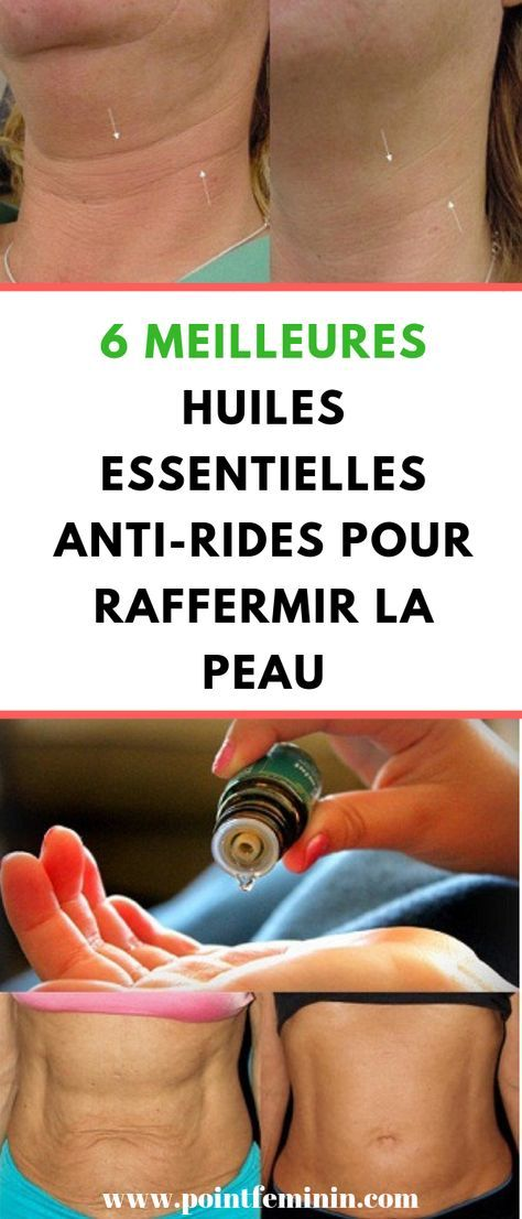 Pin On Huile Essentielles