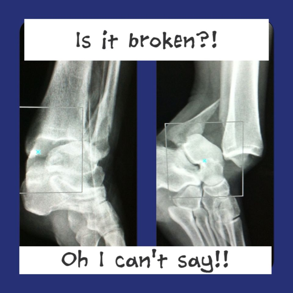 X-ray fractured and dislocated ankle
