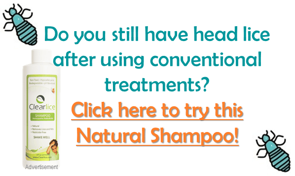 3 Shampoos You Can Use to Prevent Head Lice   Head lice ...