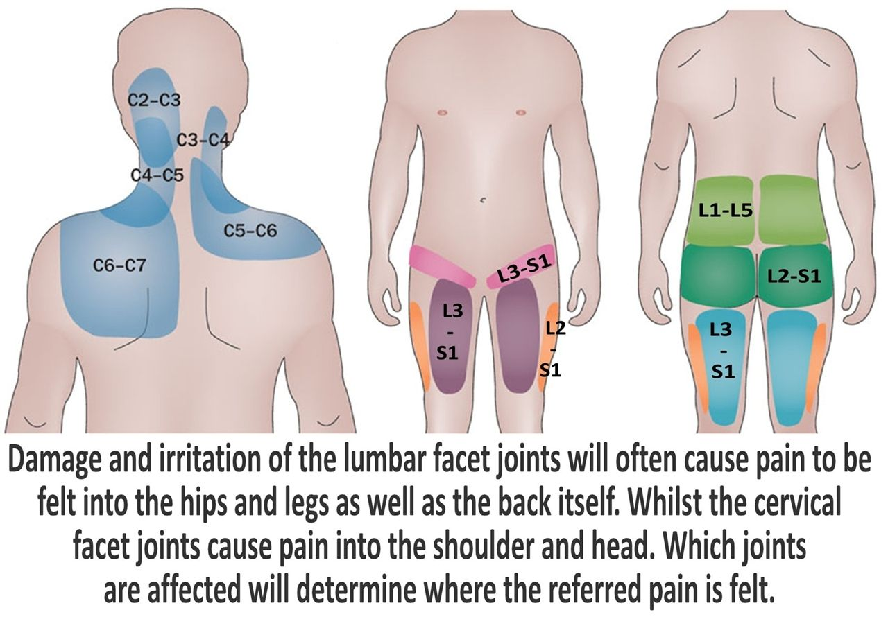 image result for referred pain patterns for cervical pain [ 1280 x 893 Pixel ]
