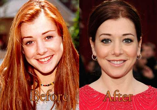 plastic Alyson surgery hannigan