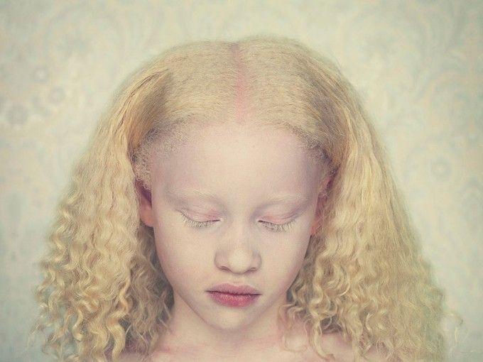 Albinos por Gustavo Lacerda | Tags: #Photography #Photo #Picture #Fotografia #Art #Arte #Fotografar #Fotografo #Beautiful #Nice #Cool #Colors #Cores #Colores #Registrar #Memoria #Memory ##Retrato #BW #PB #Black #White #Portrait #Landscape #Natureza #Nature #Autoral #Face #Rosto #Close