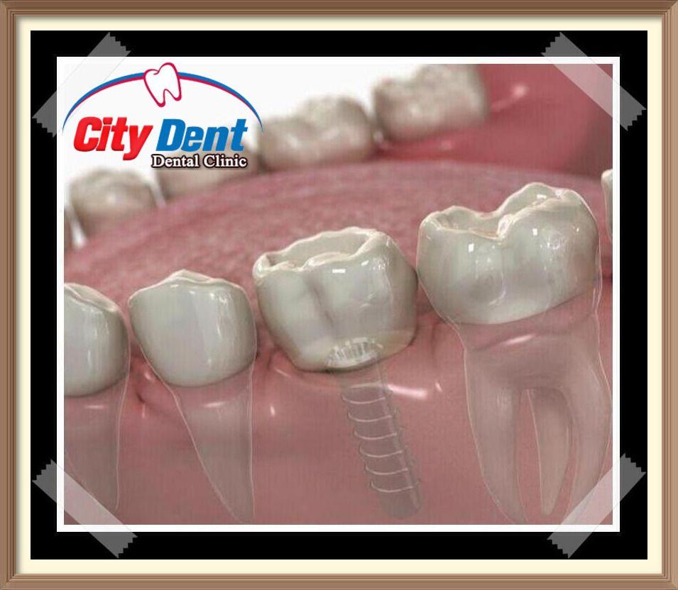 مخطئ من يعتقد أن مجال زراعة الاسنان الفورية وربما مجال زراعة الأسنان قد ظهر زراعة الأسنان الفورية فجأة على ساحة طب الأسنان Dental Clinic Dental Clinic
