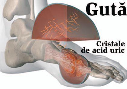 Guta - cauze, simptome, tratament