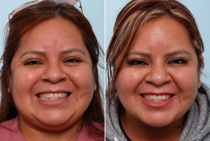 Patient 47184, Botox® Cosmetic Before and After Photos – Botox Cosmetic