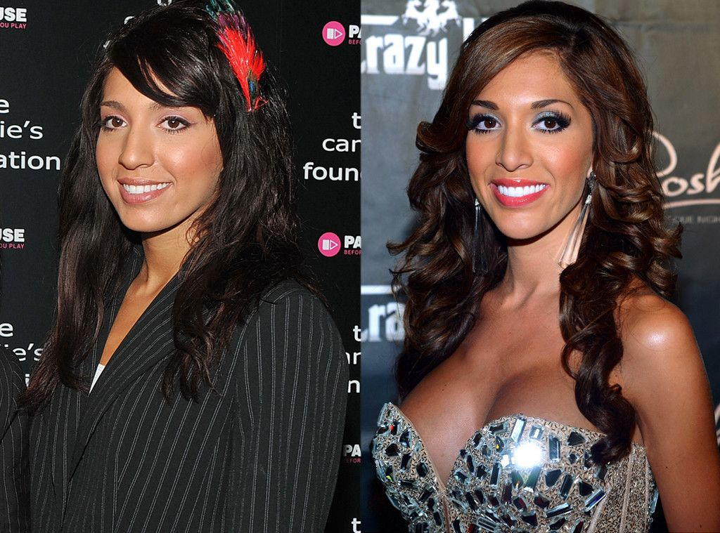 Farrah Abraham Plastic Surgery Before and After photo showing face surgery, lip job and nose job.