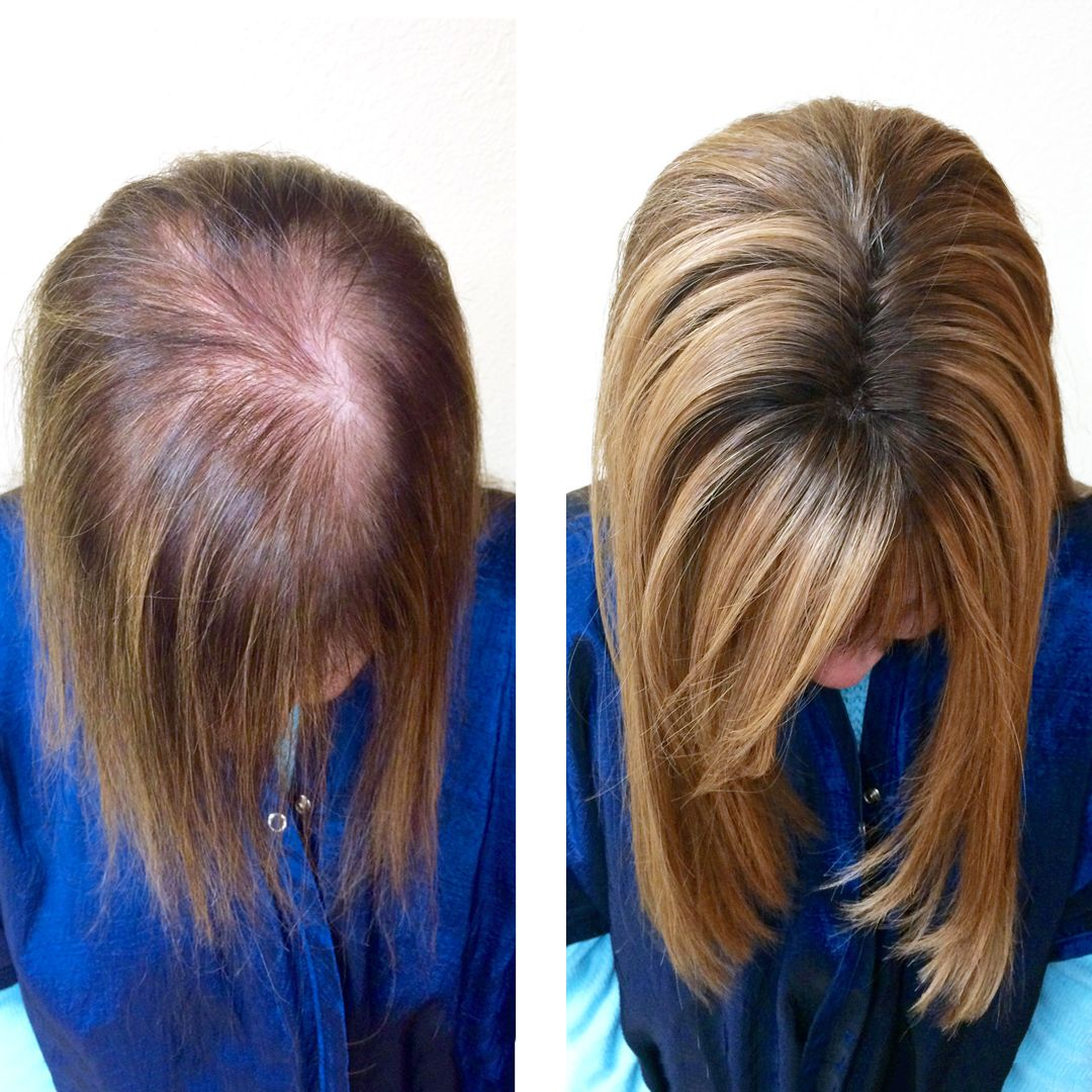 REVIVE A REVOLUTIONARY SOLUTION TO HAIR LOSS Tape in