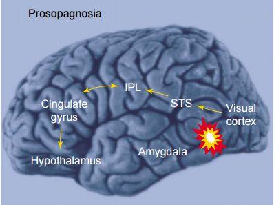 Prosopagnosia Brain