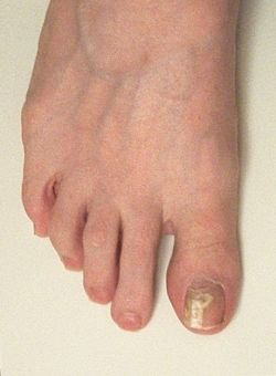 The Efficacy Of Vinegar And Hydrogen Peroxide In Treating Toenail