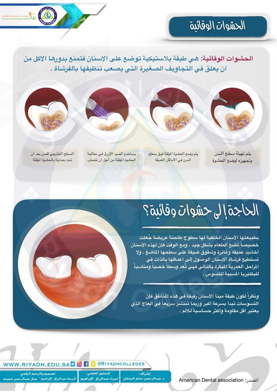 الحشوات الوقائية Dentistry Sly