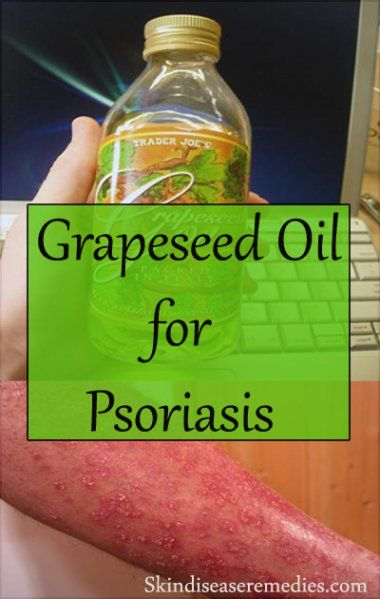 Being the largest organ, skin needs your attention. Grapeseed oil for psoriasis is a natural remedy that can't be ignored. You're not alone, according to official reports approximately 7.5 million people in USA are affected with psoriasis. Its main cause is unknown, however immune system and genetics are held responsible for psoriasis. Dry and scaly …
