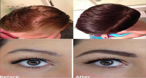 This Oil Is Amazing For Thickening And Regrowing Hair, Eyelashes And Eyebrows…