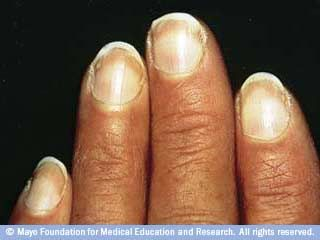 Slide Show 7 Fingernail Problems Not To Ignore Mayo Clinic Nail Health Signs Nail Health Nail Signs