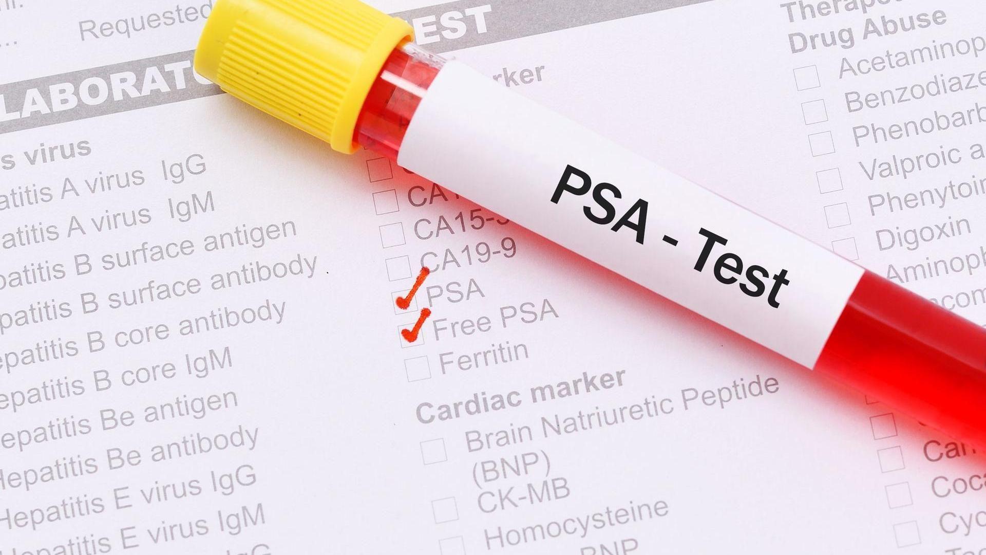psa test werte krónikus prosztatitis az életminőség