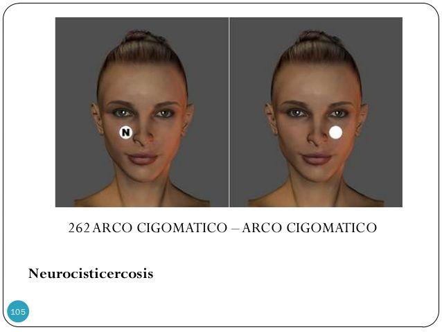 262ARCO CIGOMATICO –ARCO CIGOMATICO Neurocisticercosis 105 | Par ...