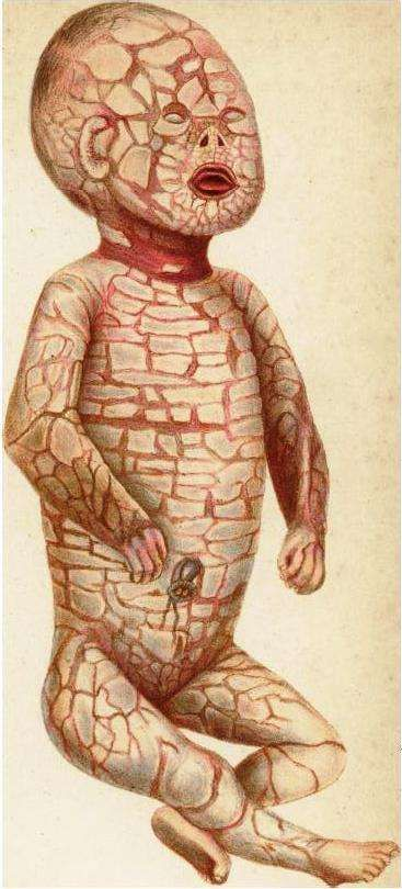 Harlequin-type ichthyosis | Ichthyosis, Harlequin syndrome ...