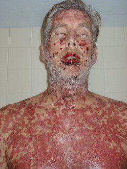 Stevens Johnson Syndrome Study Aid Steven Johnson