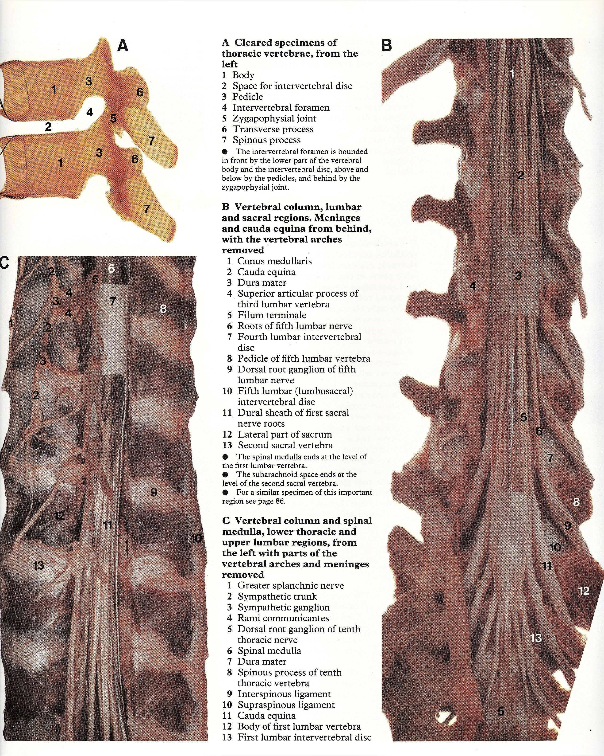 Pin by Bengt Sandberg on Part 2 of 6- Vertebral column & Spinal ...