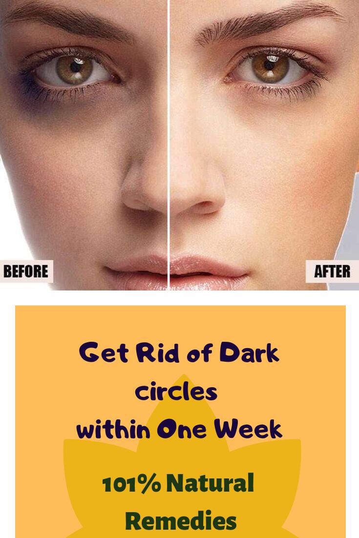 Black Skin Care Under Eyes Circle Dark Natural Remedies Remove Week7 Here I Am Giving Some Nat In 2020 Remove Dark Circles Clear Skin Naturally Natural Remedies