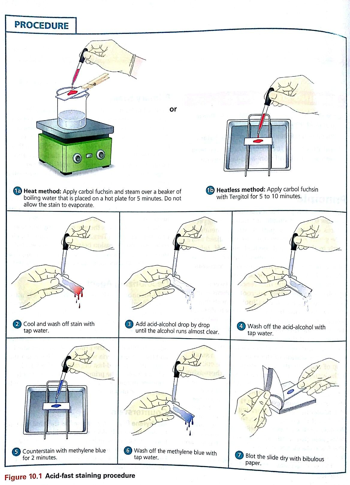 Acid-fast staining procedure | Lab | Med lab, Acid fast, Medical