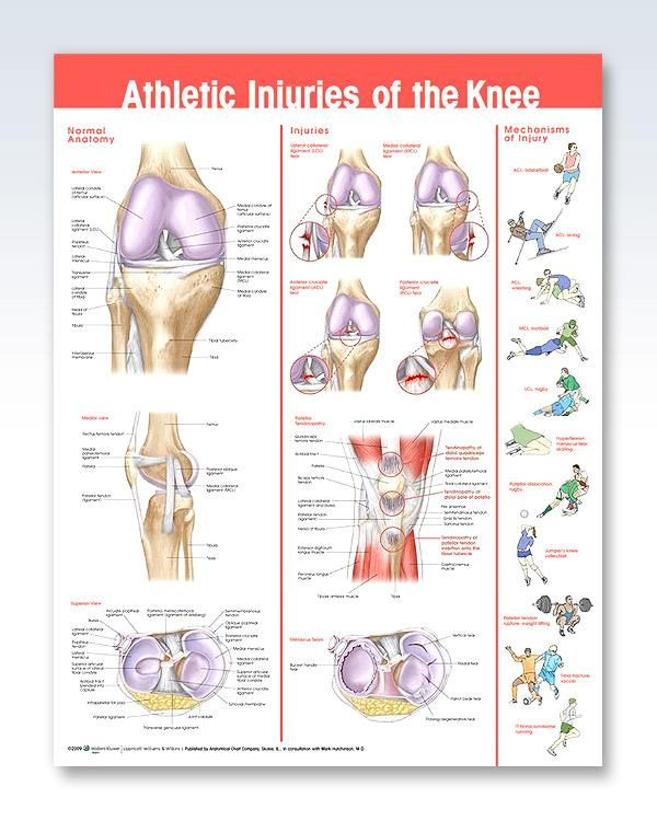Athletic injuries of the knee chart 20x26 work pinterest athletic knee injuries anatomy poster ccuart Choice Image