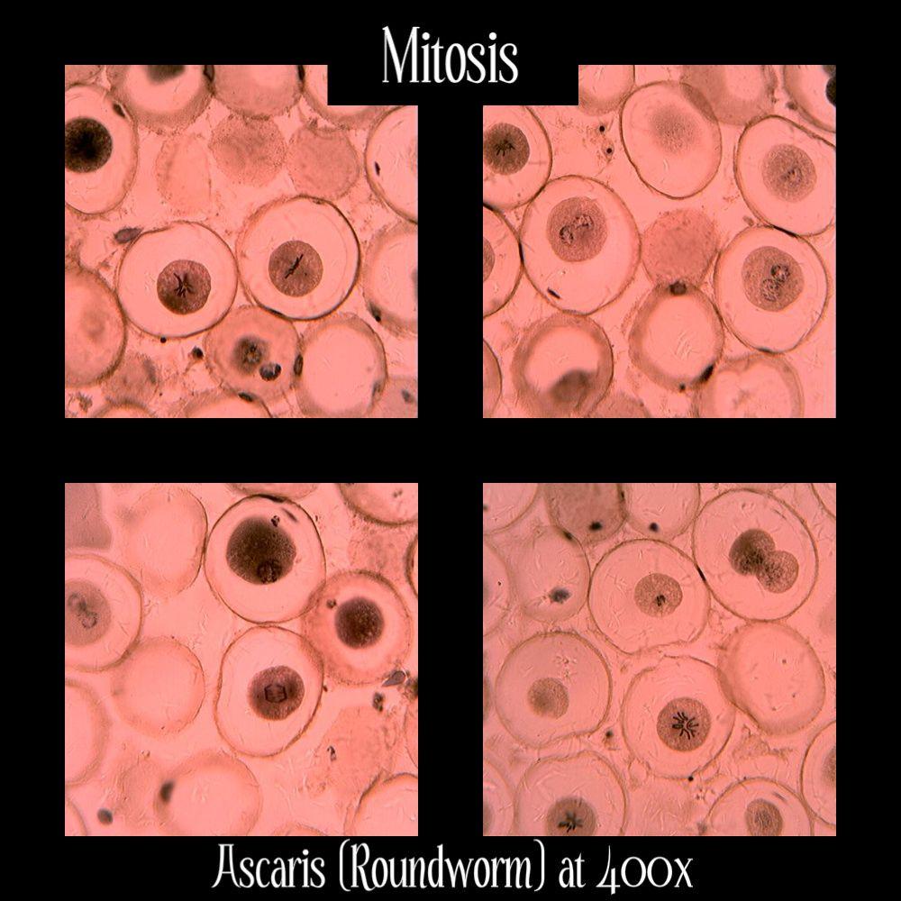 Ascaris Mitosis Intestinal Roundworm Bio Lab Images Pinterest Pin Labeled Diagram On Plasma Membrane High School Credits Image