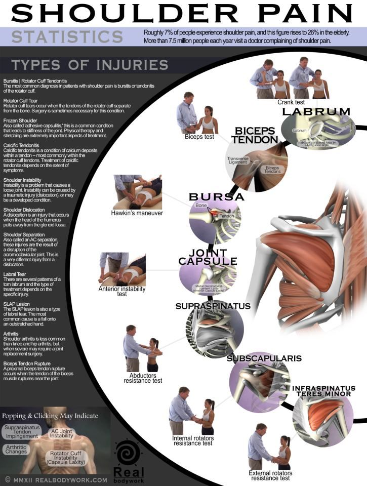 "Great ""Shoulder Pain"" chart! Repinned by  SOS Inc. Resources  http://pinterest.com/sostherapy."
