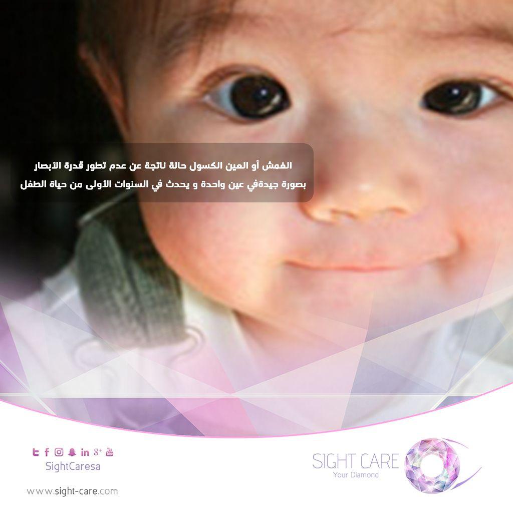 العين الكسوله حالة ناتجة عن عدم تطور قدرة الإبصار بصورة جيدة في عين واحدة ويحدث في السنوات الأولى من حياة الطفل رعاية البصر م Social Media Baby Face Face
