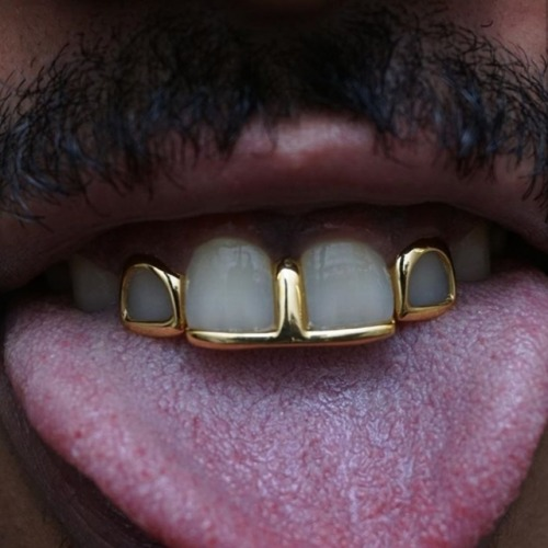 By Milk Honey London Black Is Beautiful Neguinhxx Teeth Jewelry Gold Grillz Gold Teeth