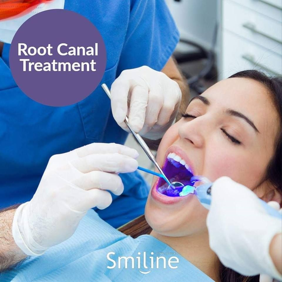 A Root Canal Is Required When You Suffer From Inflammation