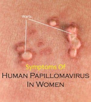 Human papillomavirus in women