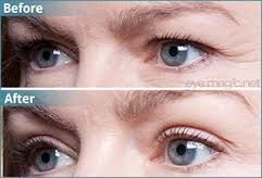 Image Result For Botox For Droopy Eyelids Botox Forehead Eyelid Lift Eye Lift