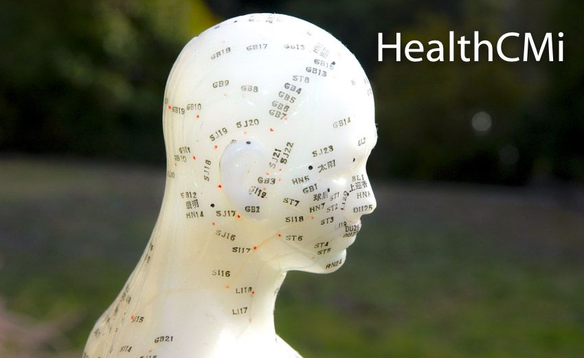 Acupuncture Beats Drugs For Insomnia Relief Acupuncture