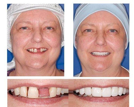 Dentistry ROCKS!   #CosmeticDentistry #DentalImplant #Dentist #Dentistry #DentalHygiene #DentalAssistant #DentalLabTech #Dentaltown #PatientEducationIdeas