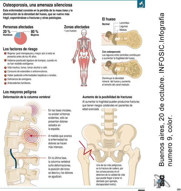 26++ Que es la osteoporosis de la columna vertebral info